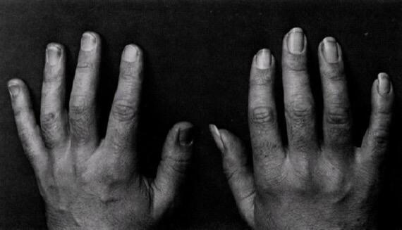 Ногти гитариста для игры на гитаре фламенко